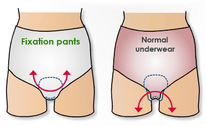 Fixation pants underwear incontinence